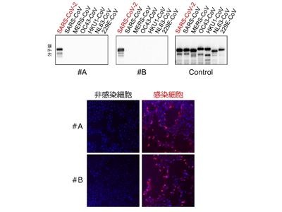 新型コロナウイルス特異的な抗体の開発に成功、簡易イムノキット構築へ ...